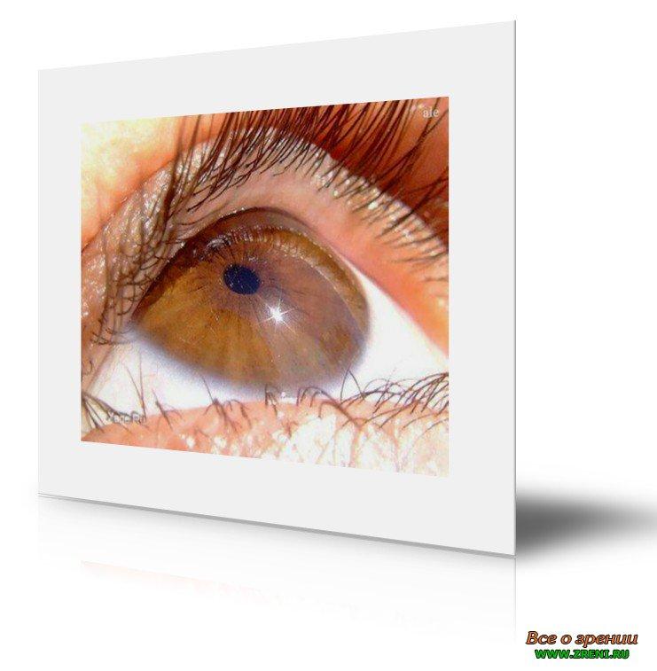Стоимость операции по корректировке зрения