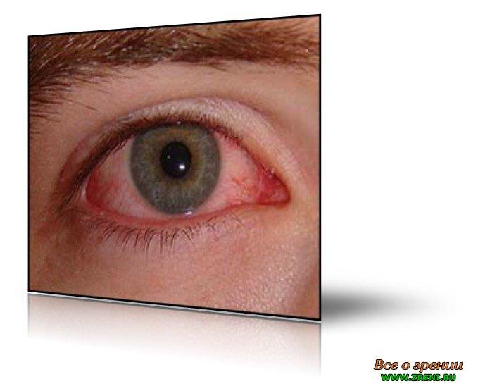 рожков аллергический конъюнктивит пдф