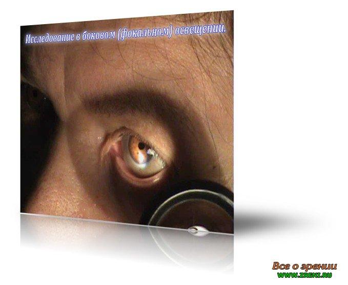 Диафаноскопия фото