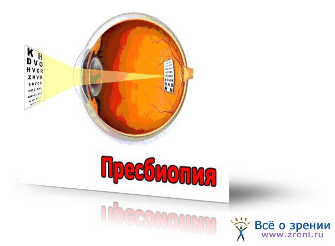 Пресбиопия фото