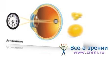 Могут ли дать инвалидность при потери зрения одного глаза