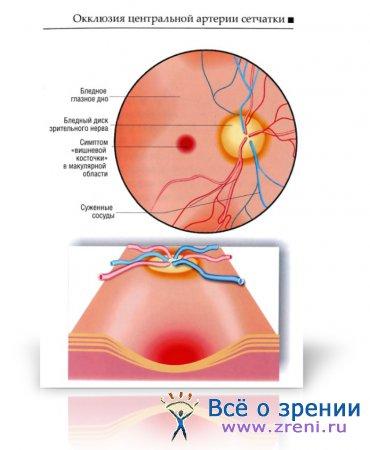 Боли в спине под ребрами причины и лечение