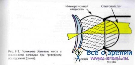 Показания для конфокальной микроскопии роговицы thumbnail