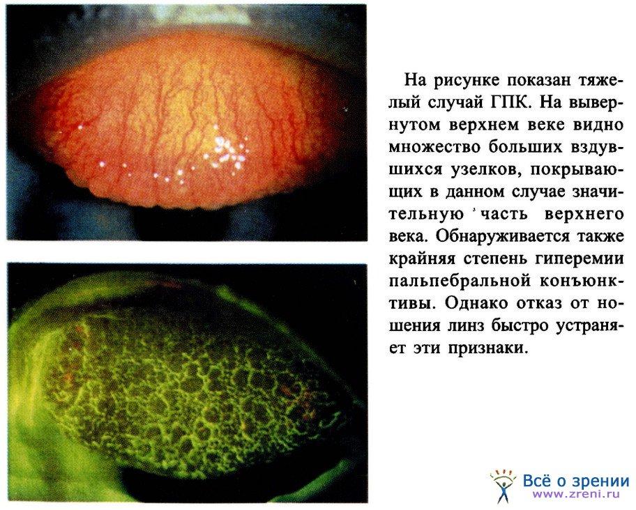 тепловая аллергия лечение