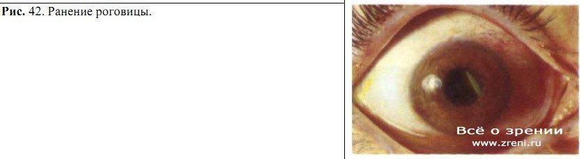 Клиника по коррекции зрения эксимер