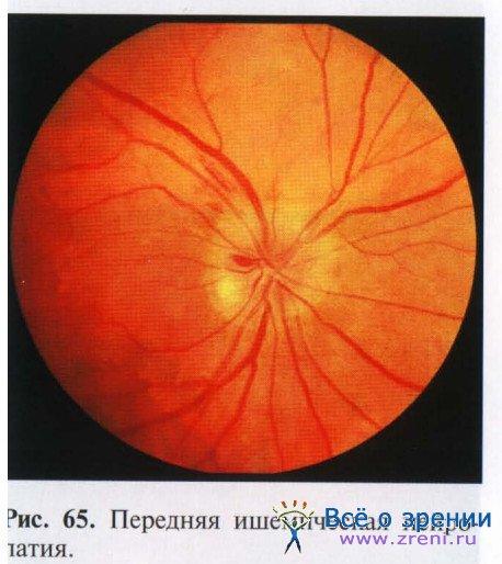 Ишемические заболевания сетчатки и зрительного нерва