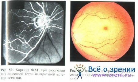 Ишемия сетчатки глаза