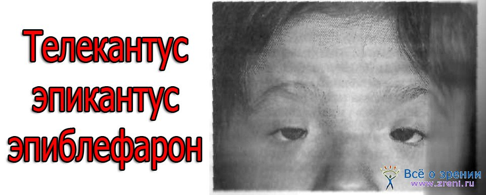 Эпиблефарон фото
