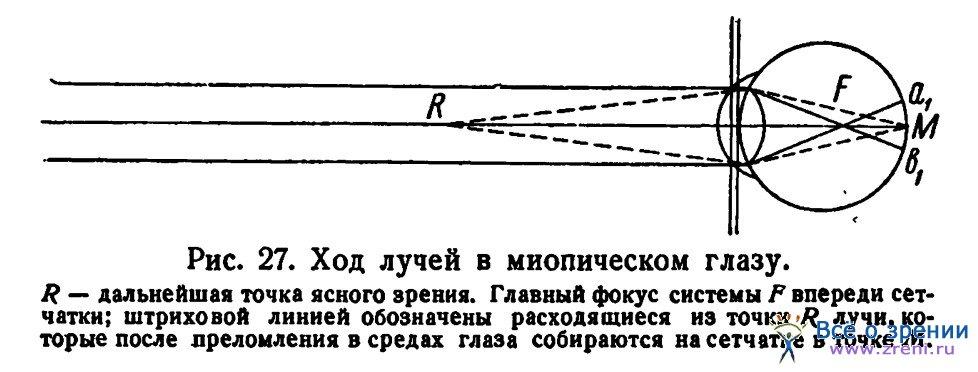 схема миопического глаза.