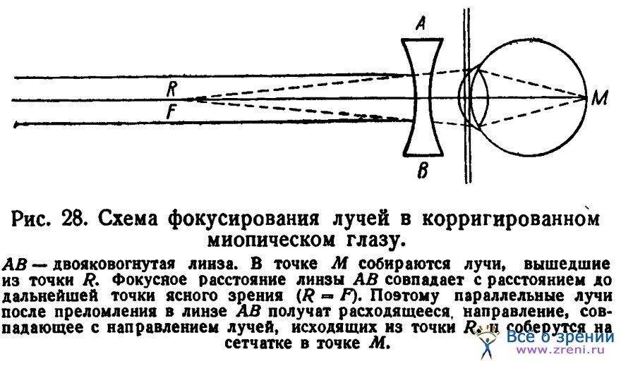 Подбор очков при миопии (близорукость)