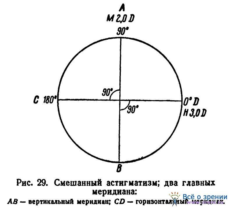 Лазерная коррекция астигматизма минск
