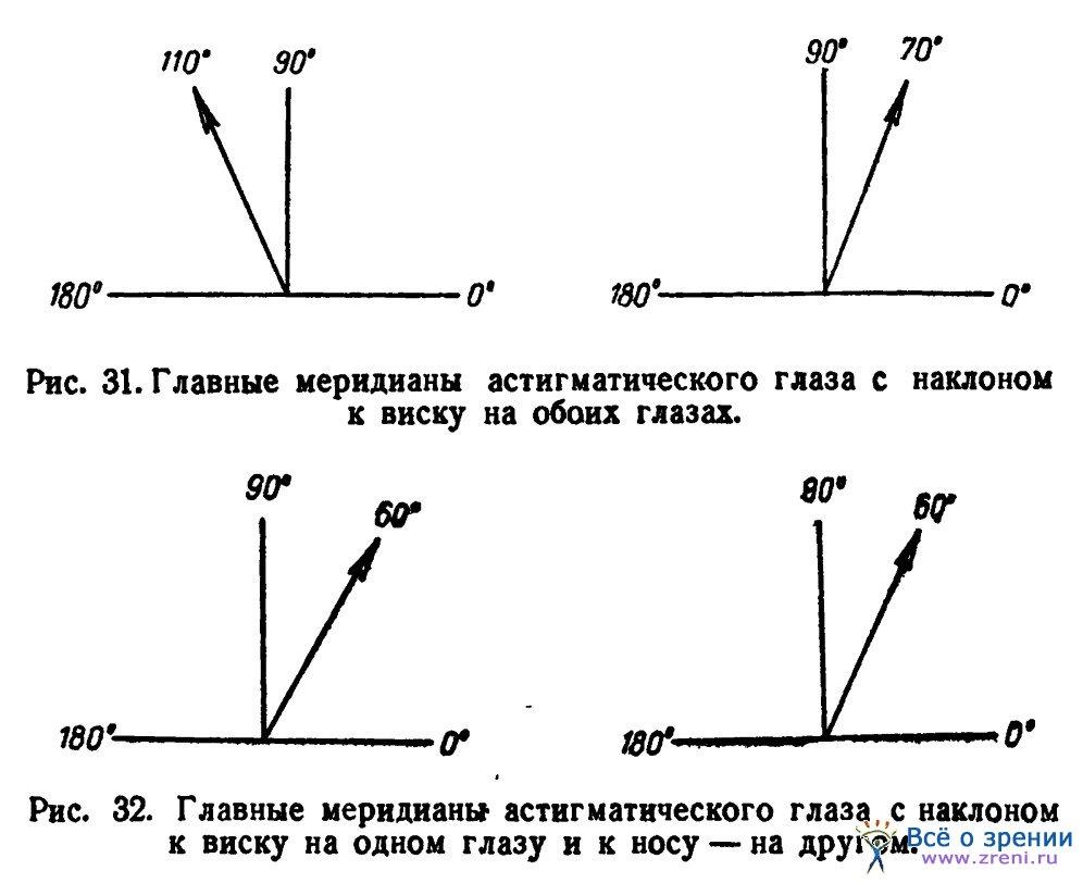 Дальнозоркость на одном глазу астигматизм
