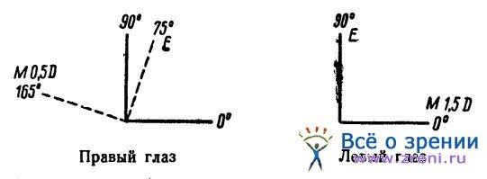 Контактные линзы миопия с астигматизмом