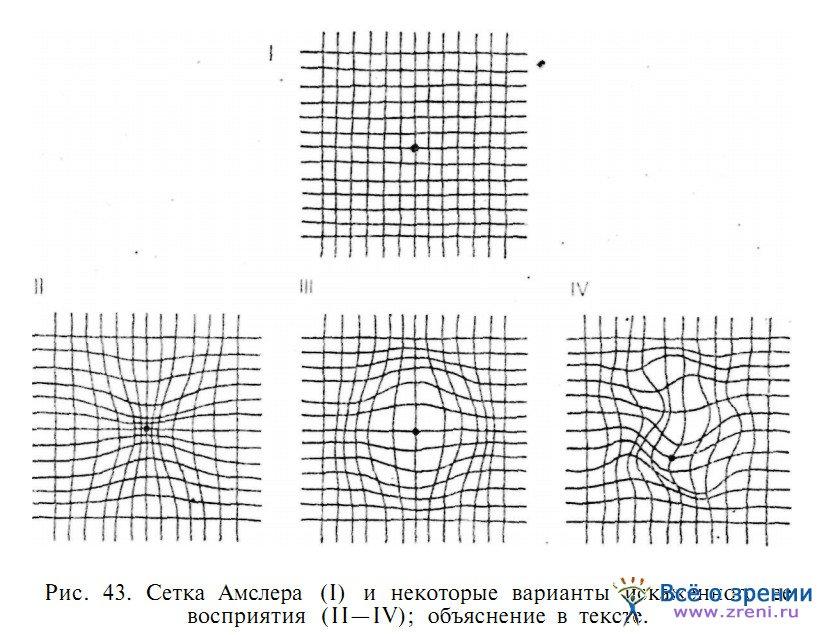 топографии поля зрения