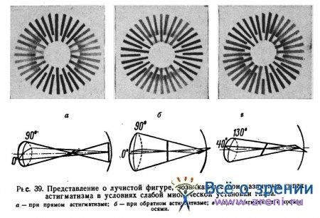 Астигматизм лазерная операция цена