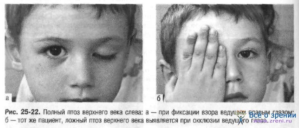 Пальпебральный