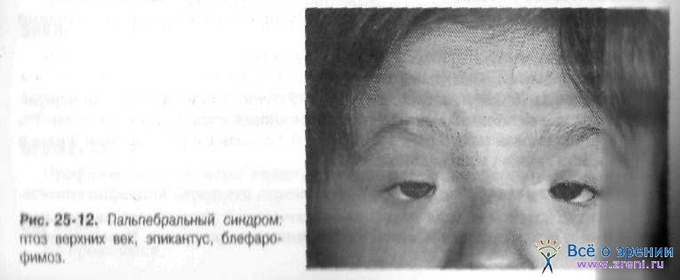 Пальпебральный фото