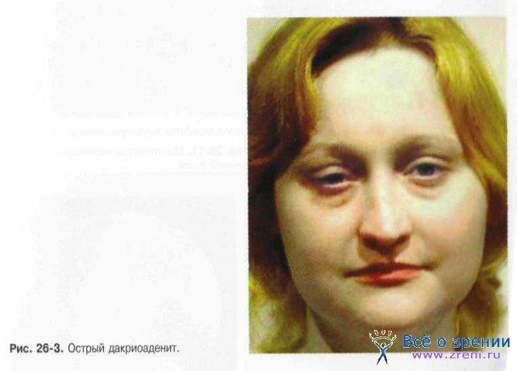 синдром двс фото