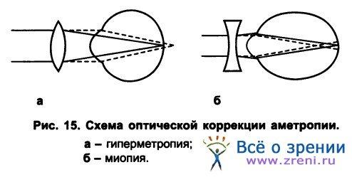 Оптический аппарат глаза