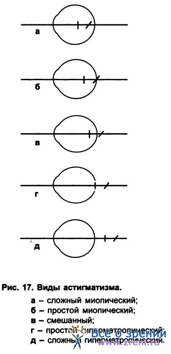 Упражнения для глаз при астигматизме и близорукости