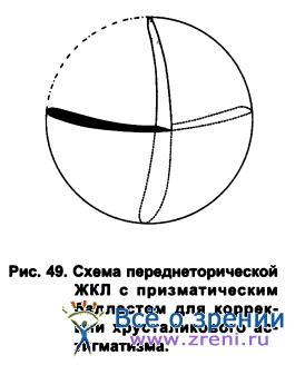 Простой миопический астигматизм мкб