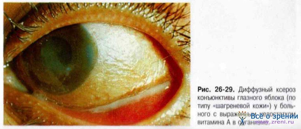 Ксерофтальмия фото