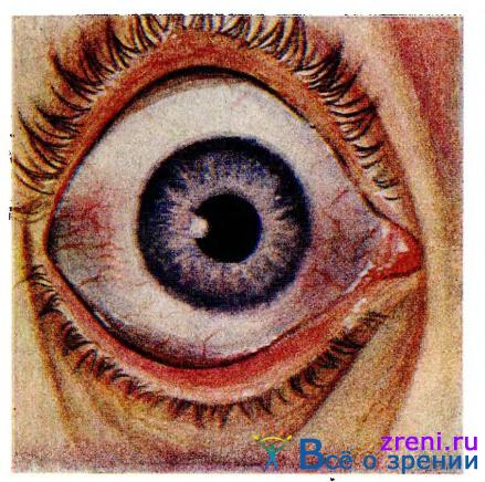 Детские заболевания глаз из книги: Справочник - детские болезни