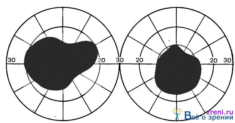 Лазерная коррекция зрения цена чебоксары