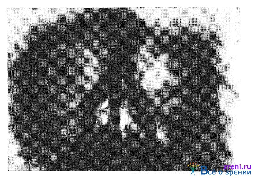 Синдром Парино фото