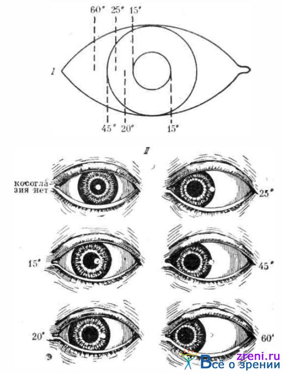 Патология глазодвигательного аппарата.