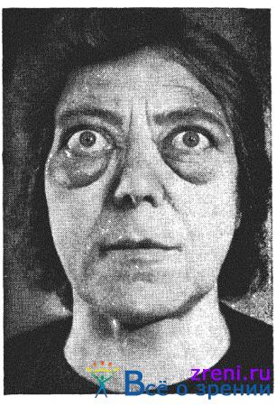 Нарушения щитовидной железы связанные с Глаукомой