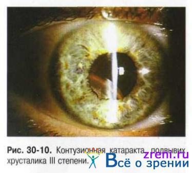 413 осложненная травматическая катаракта при симпатическом воспалении