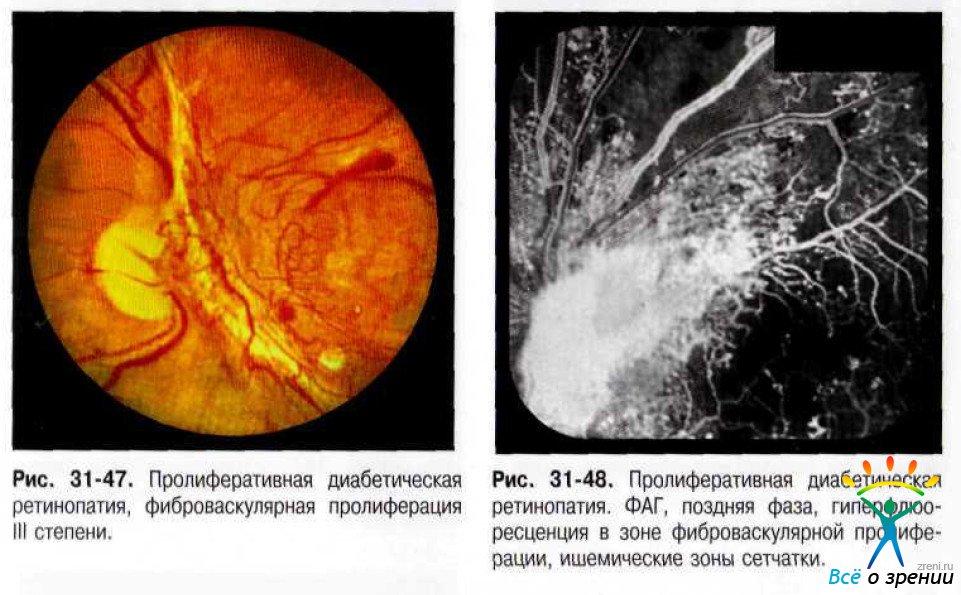 Фоторетинопатия фото