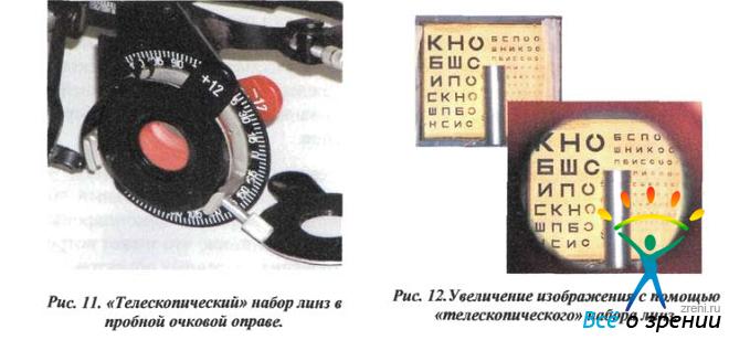 Компьютерная коррекция зрения программы