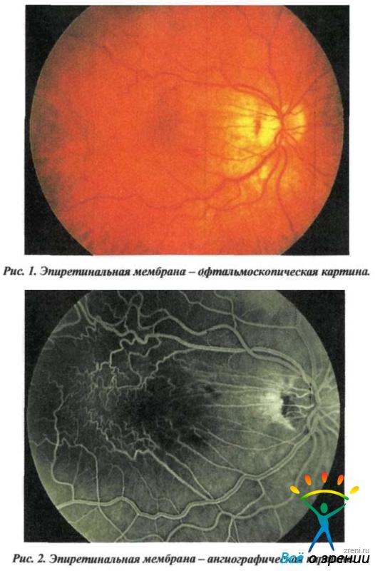 Фиброплазия Ретролентальная