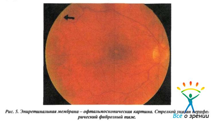 Преретинальная фиброплазия макулярной области