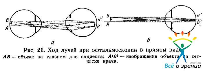 Увеличение при офтальмоскопии