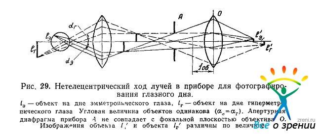 Точность измерений на глазном
