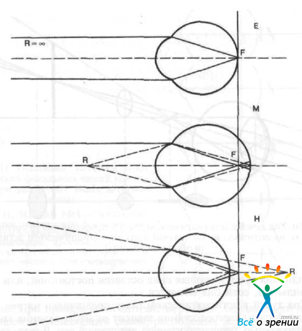 Эмметропия фото