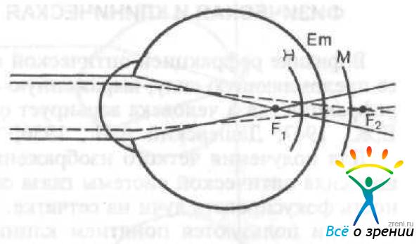 Хроматическая аберрация глаза.
