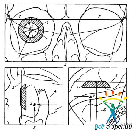 Обзорная бесскелетная рентгенография