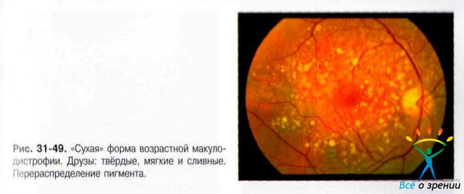 Сколько стоит эксимер-лазерная коррекция зрения