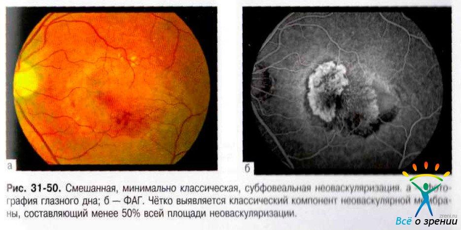 После операции по замене хрусталика зрение не улучшилось