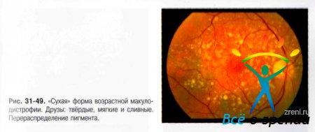 Возрастные изменения зрения и контактные линзы
