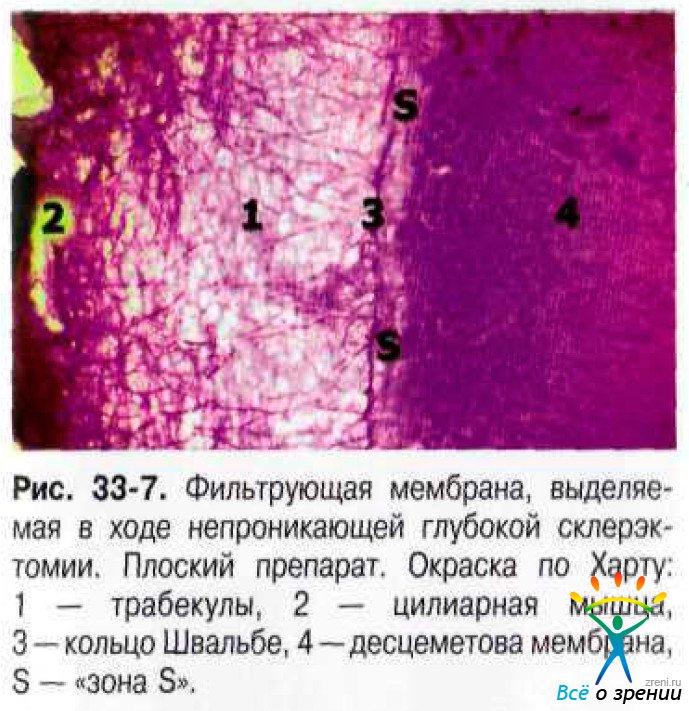 оболочка десцеметова фото