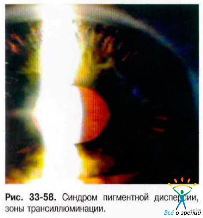 Трансиллюминация фото