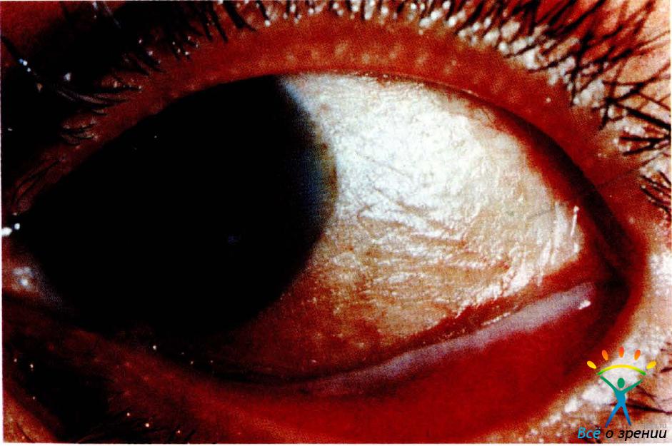 Кератомилеоз интрастромальный