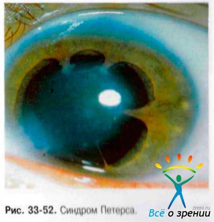 Редкие формы глаукомы