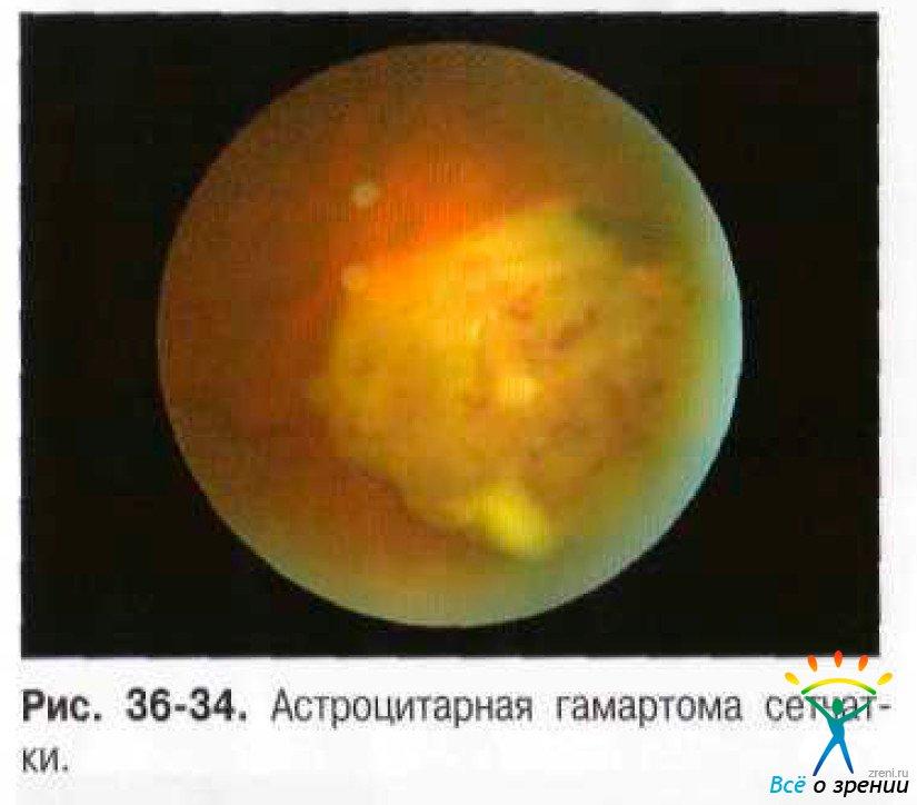 Фиброплазия фото