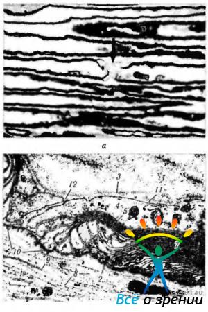 Периферический нерв.  Перехваты Ранвье: а - светооптическая микроскопия.  Стрелкой указан перехват Ранвье...